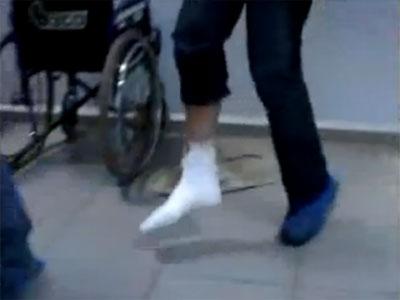 Как ходить со сломанной ногой?